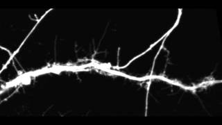 Spine dynamics of control neurons
