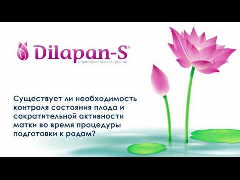 Подготовка шейки матки с помощью Дилапан S
