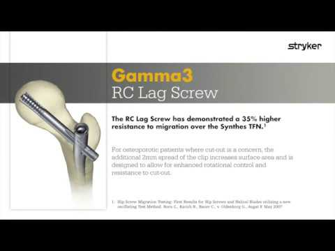 Stryker Trauma & Extremities | Femoral Nailing | Gamma3 RC Lag Screw