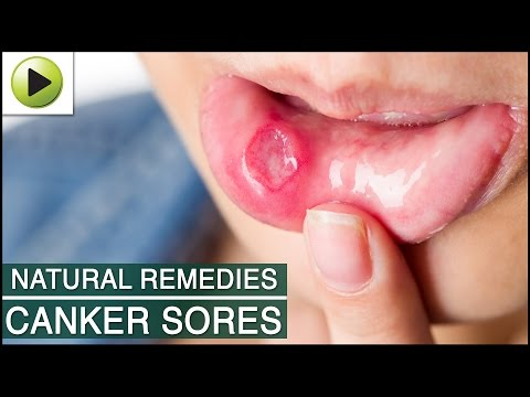 Canker Sores - Natural Ayurvedic Home Remedies