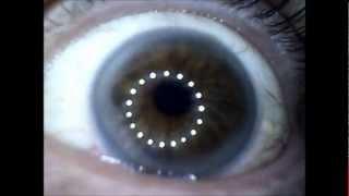 Endoscopic Look Inside... My Eye...
