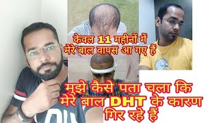 11 Months Best Hair Transplant Result Review || What is the Reason of My Hair Fall?