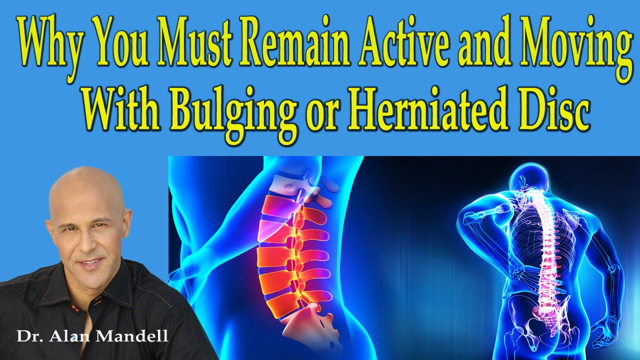 Why You Must Remain Active and Moving With Bulging and Herniated Discs - Dr  Mandell