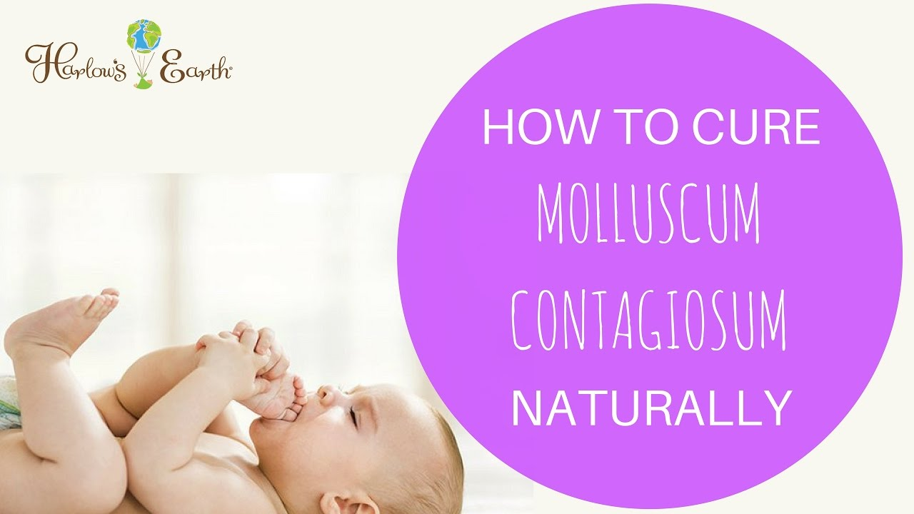 How To Cure Molluscum Contagiosum Naturally Youtube
