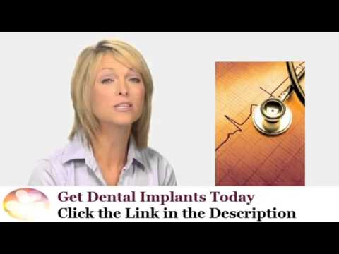 San Diego Dental Implants California #1 in Best Cosmetic Dentistry