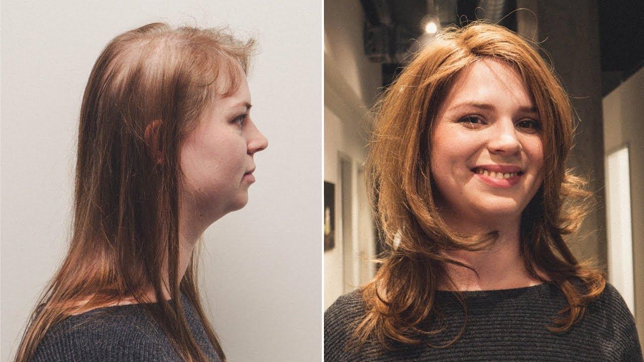 Transformation Zum Vollen Haar Tritec Hair Integration