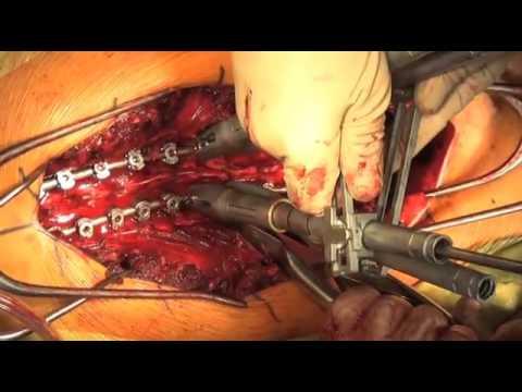 transforaminal cervical epidural steroid injection