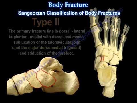 Navicular Fractures - Everything You Need To Know - Dr. Nabil Ebraheim