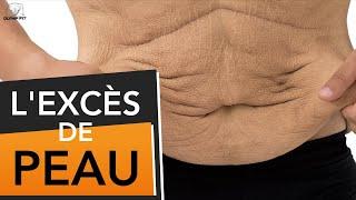 Excès de peau après une perte de poids, causes et solutions (peau flasque détendue)