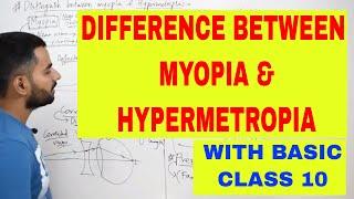 myopia és hyperopia vizsga)