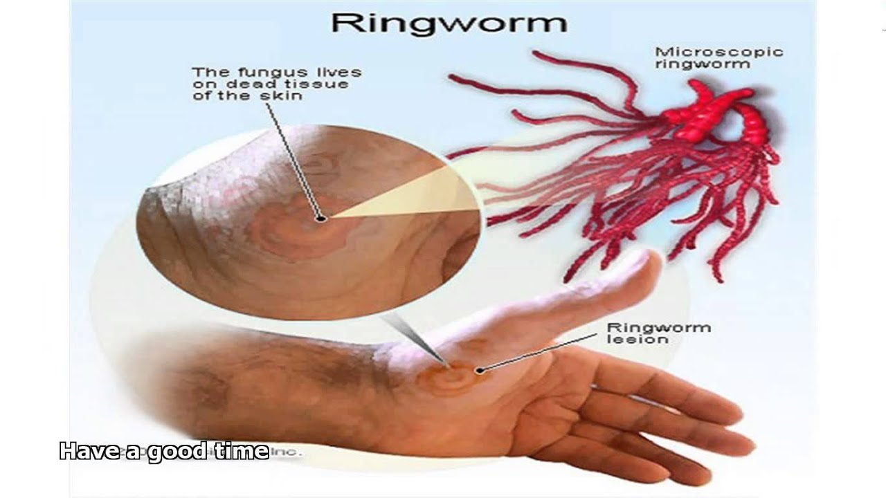 What's the Treatment for Ringworm?