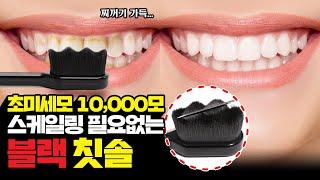 칫솔이 닿지않던 치아사이 프라그 초미세모로 완벽제거! …