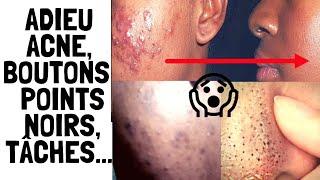 👌COMMENT ÉLIMINER LES BOUTONS, ACNÉ, POINTS NOIRS, TÂCHES NOIRES, RIDES,... DU VISAGE By Nelie soft