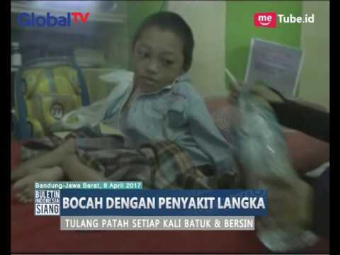 Miris, Anak Ini Selalu Patah Tulang Sehabis Batuk & Bersin - BIS 09/04