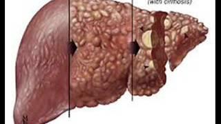 hepatitis ہیپاٹائٹس हैपेटाइटिस c 2 infection control icsp94 urdu hindi