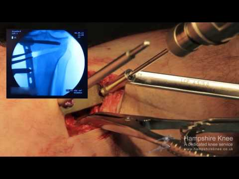 HTO - (High Tibial Osteotomy) Hampshire Knee