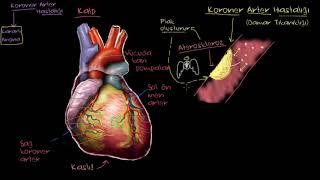 Koroner Arter Hastalığı Nedir? (Fen Bilimleri) (Sağlık ve Tıp)