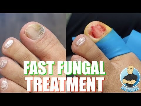 THE FASTEST WAY TO TREAT TOENAIL FUNGUS?!