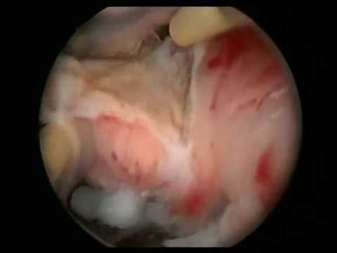 Faq hysteroscopy virginity