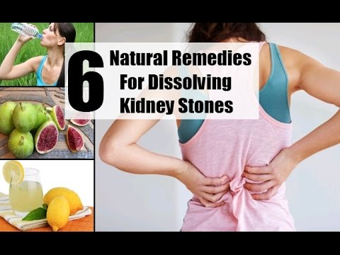 kidney stones - kidney stone diet and home remedies