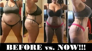 1 Year Post VSG!!! | Before and Now Pics | Saggy Skin