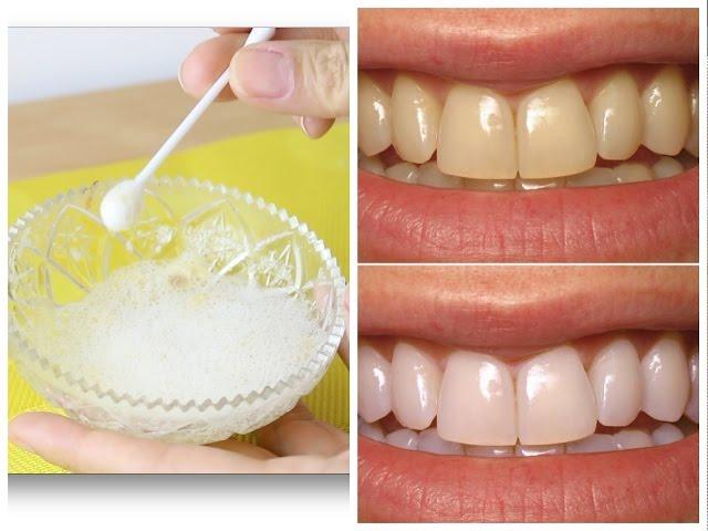Aprenda A Clarear Os Dentes Com Casca De Banana