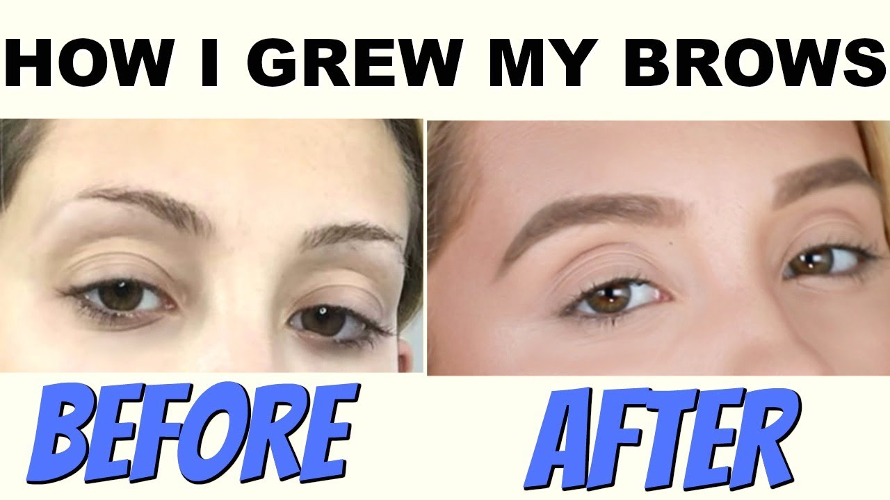 This One Product Saved My Eyebrows How To Grow Your Eyebrows Youtube