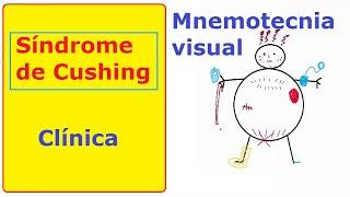 Síndrome de Cushing: memoriza la clínica | Mnemotecnia-clases de medicina
