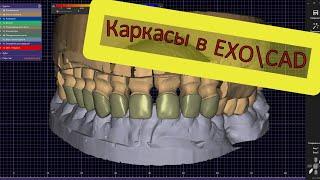Моделировка циркониевого каркаса в EXOCAD полностью Моделирование зубов на компьютере. Керамика