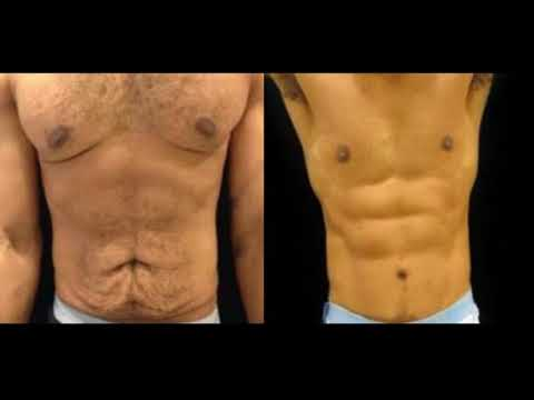 Male 4D High Definition Liposuction