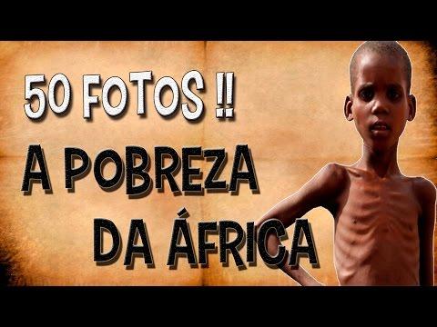 50 fotos - A pobreza da África