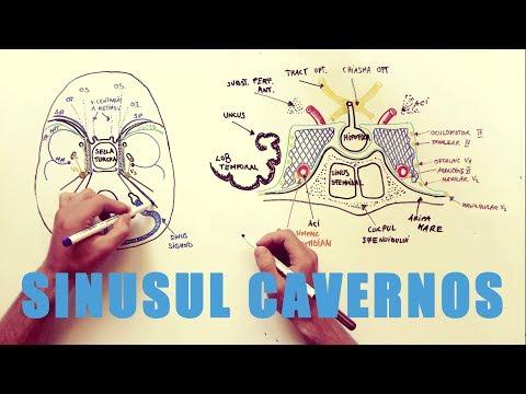 ce înseamnă să ai glezne umflate tromboflebita sinusului cavernos