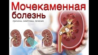 Причины развития мочекаменной болезни