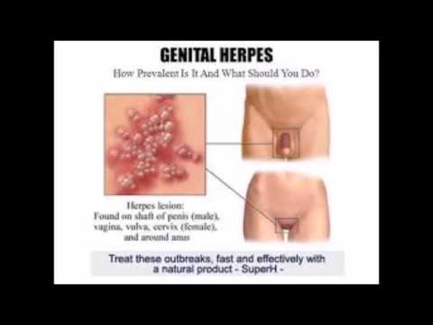 How To Use Zovirax Cream On Herpes - Heal Genital Herpes Naturally