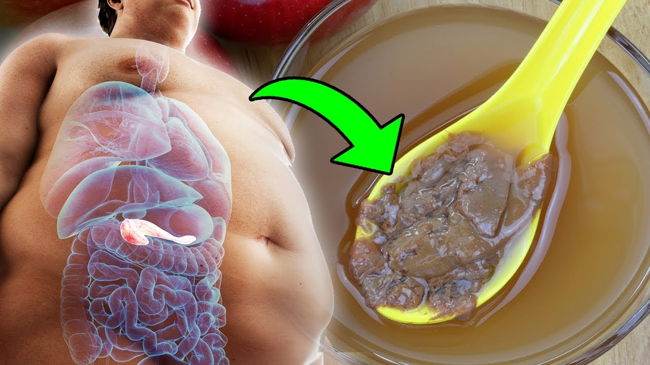 How To Use Apple Cider Vinegar To Lose Weight And Reduce Belly Fat