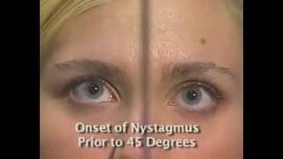 Horizontal Gaze Nystagmus Test - HGN - NHTSA horizontal gaze eye movement test