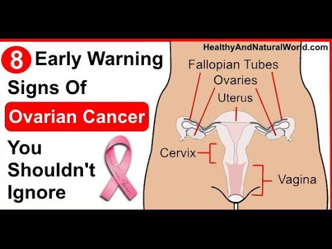Ovarian cancer signs and symptoms