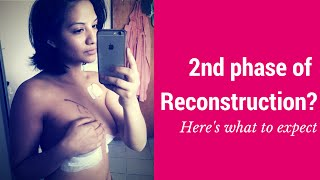 What to expect for your 2nd Phase of Reconstruction [Breast Cancer]