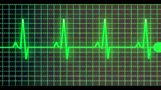 Heartbeat sound effect - normal speed