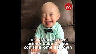 Lucas Warren es el primer bebé Gerber con síndrome de Down