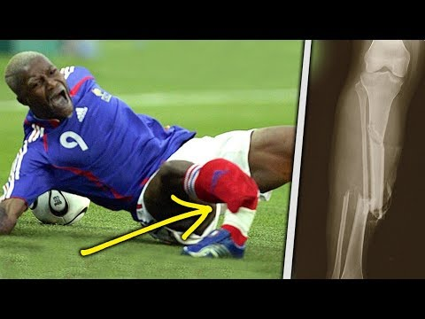 10 Horrific Injuries That RUINED The World Cup!