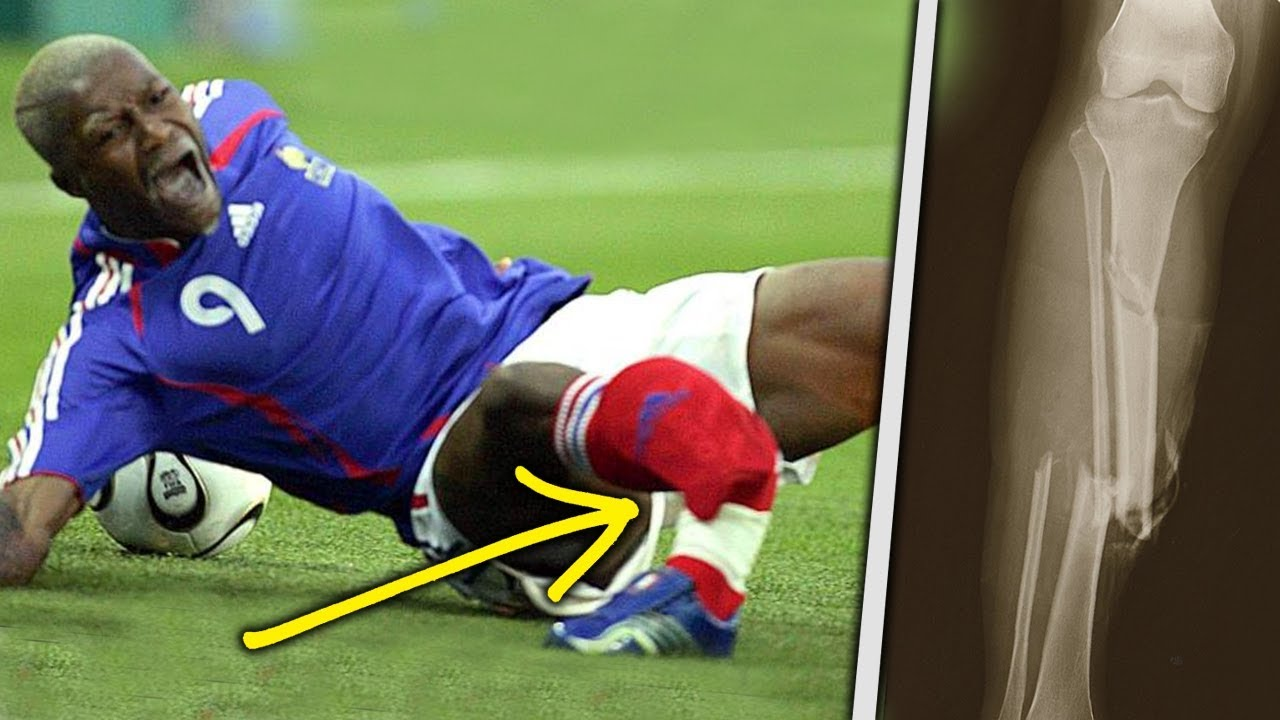 Download 10 Horrific Injuries That RUINED The World Cup!