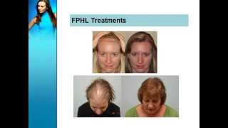Causes and treatment of Female Hair Loss
