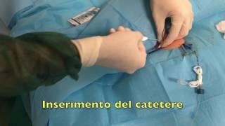 GAVeCeLT - CICC tunnellizzato 3Fr Alfamed in bambino