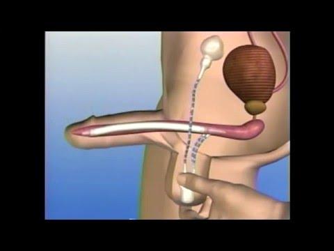 erecție după operația de prostatectomie