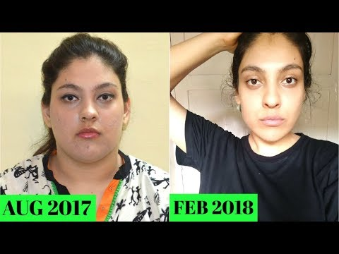 Weight Loss Tips That Actually Work Helped Me Lose 28 Kg 62 Pounds In 6 Months No T