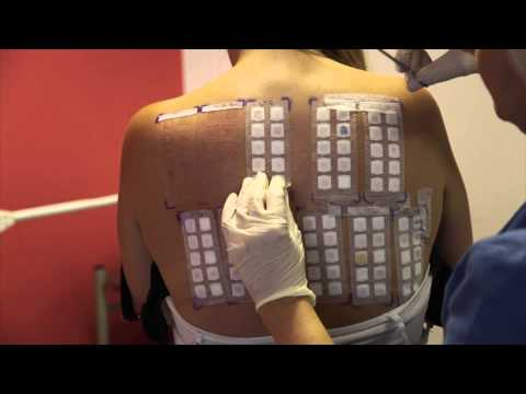 Skin Allergy Testing Using Patch Tests