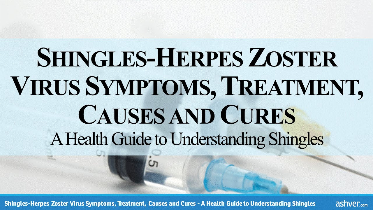 how to stop herpes from spreading on your body