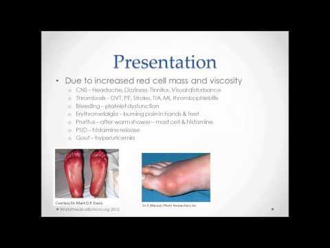 Polycythemia - USMLE Step 2 Review