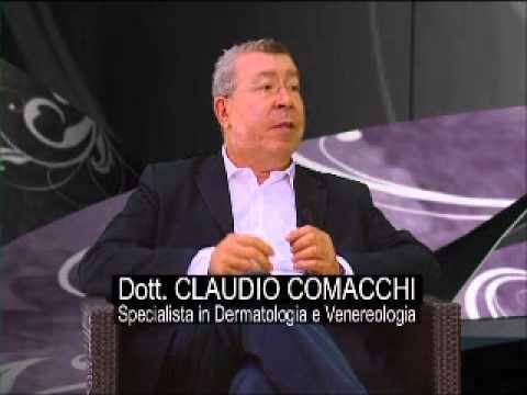 Vitiligine Claudio Comacchi